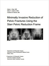 Starr Frame - Minimally Invasive Reduction of Pelvic Fractures Using the Starr Pelvic Reduction Frame